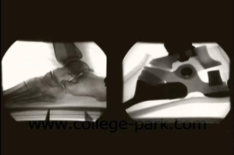 X Ray Image
